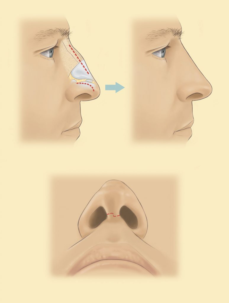 Where are the rhinoplasty incisions placed?
